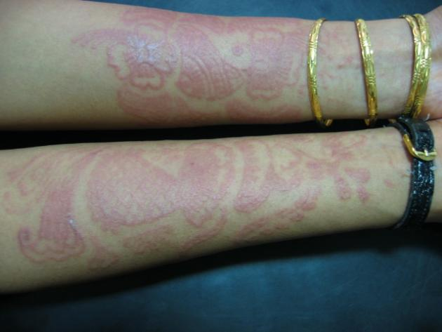 Temporary Henna Tattoos Can Cause Long Lasting Allergic Reactions
